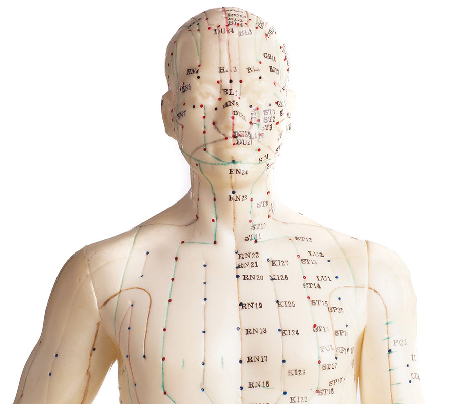 Acupuncture services needle points on body